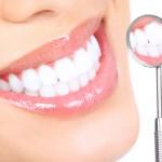 歯磨き粉では白くならないし歯医者は高いという方
