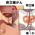 前立腺がん死亡急増!30代から必須の前立腺がん予防