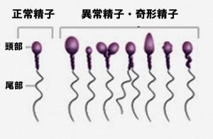 異常精子 奇形精子