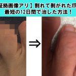 【証拠画像アリ】割れて剥がれた爪を最短の12日間で治した方法!
